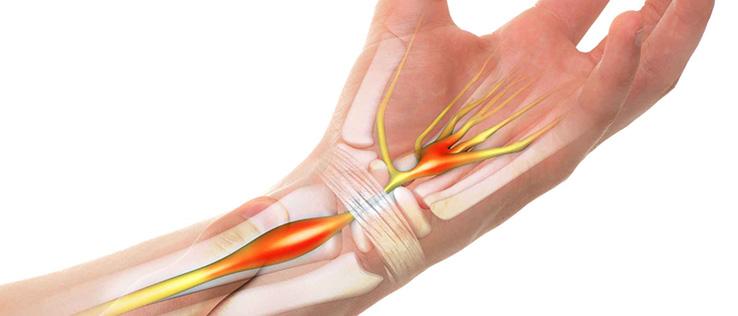 karpal tünel sendromu fizik tedavi hareketleri